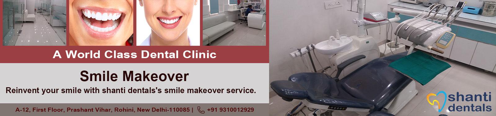Smile Makeover Care in Rohini Delhi by Shanti Dentals