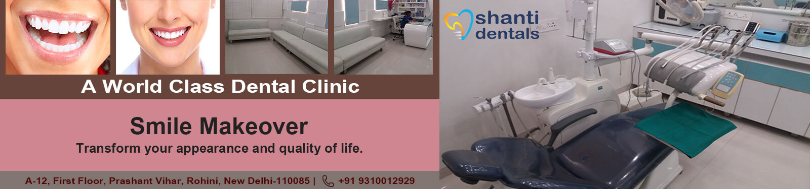 Smile Makeover Treatment in Rohini Delhi by Shanti Dentals