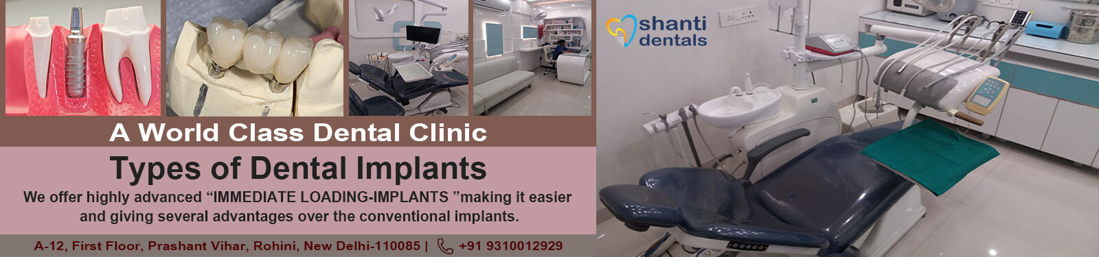 Types of Dental Implants Treatment in Rohini Delhi by Shanti Dentals