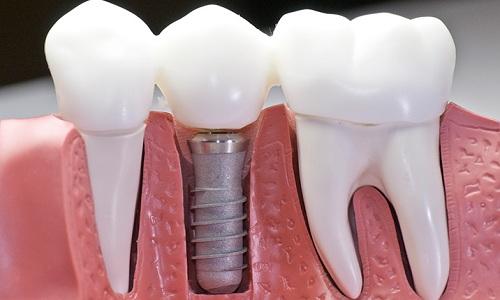 Titanium Dental Implants - Shanti Dentals | Benefits of Dental Implants